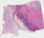 large cell neuroendocrine carcinoma (vs atypical carcinoid) (Lung) [1147/5]