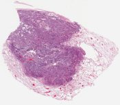 Squamous cell carcioma (Lung) [1147/6]