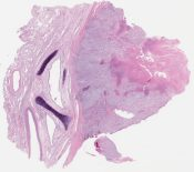 Sarcomatoid (spindle cell) carcinoma (Lung) [1147/9]
