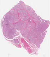 Alveolar soft part sarcoma (Soft tissue (thigh)) [1148/8]
