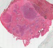 Rhabdomyosarcoma (Soft tissues) [115/13]
