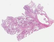 Clear cell carcinoma (Ovary) [1152/5]