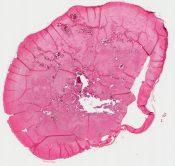 Pilar cyst (Skin (scalp)) [1153/1]