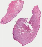 Called atypical fibroxanthoma vs primary or metastatic giant cell carcinoma (Skin, eye (eyebrow)) [1153/10]