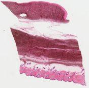 Called neurocristic hamartoma Looks like Helwig's blue melanoma to me (Skin (scalp)) [1153/4]