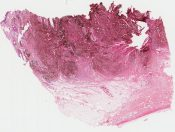 Blue nevus (skin (scalp)) [1153/5]