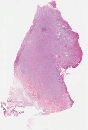 Spindle cell melanoma (Skin (shoulder)) [1153/7]