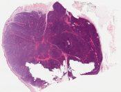 Eccrine dermal cylindroma (Skin (shoulder)) [1153/8]