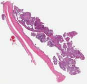 Borderline serous neoplasm (Ovary) [1154/2]