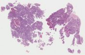 Carcinosarcoma/ Mixed mullerian tumor (with heterologus elements=cartilage) (Ovary) [1154/5]