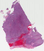 Synovial sarcoma (Soft tissue, buttock) [1157/10]