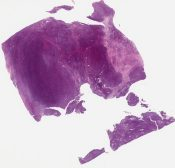 Called malignant hemangiopericytoma Looks like synovial sarcoma to me (Soft tissue (leg)) [1157/8]