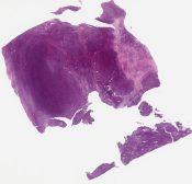 Called malignant hemangiopericytoma Looks like synovial sarcoma to me (Soft tissue (leg)) [1157/8]