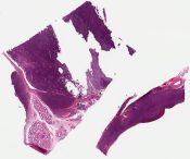 Malignant lymphoma, small non-cleaved B-cell (Burkitt like) (Testis) [1158/7]
