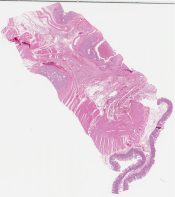 Malignant neuroendocrine tumor (Pancreas) [1159/10]