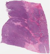 Ewing sarcoma/PNET, Askin type (Lung & soft tisue (chest wall)) [1159/2]