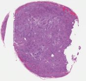 Poorly differentiated carcinoma (?acinic) (Lymph node (? parotid)) [1160/7]