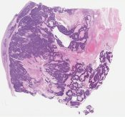 Called transitional cell carcinoma (doubt) Diff Dx: Small cell neuroendocrine carcinoma (Ovary) [1161/10]