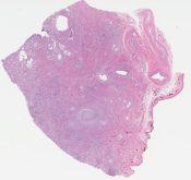 Cervical adenocarcinoma (Cervix) [1161/2]
