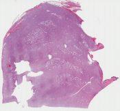 Dermatofibrosarcoma protuberans (Skin, thigh) [1162/10]