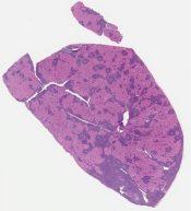 Warthin tumor (salivary gland (parotid)) [1164/10]