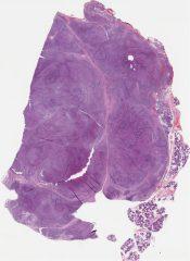 Acinic cell carcinoma (SaLIVARY GLAND (PAROTID)) [1164/3]