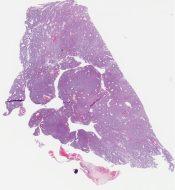 Low grade malignant myoepithelioma (myoepithelial carcinoma) (Salivary gland) [1164/6]