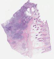 Metastatic high grade glioma (Soft tissue, scalp (CNS)) [1165/6]