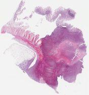 Diffuse large cell lymphoma (Small bowel) [1166/3]