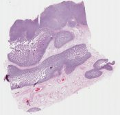 Clear cell sarcoma/ Melanoma of soft parts (Small bowel) [1166/8]