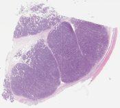Spermatocytic seminoma (Kidney) [1167/7]