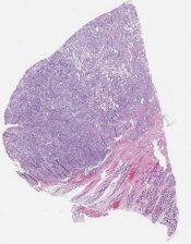 Yolk sac tumor/ Endodermal sinus tumor (Testis (in a 11 month old)) [1167/9]