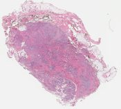 Diffuse giant cell tumor of tendon sheath (Soft tissue (heel)) [1169/7]