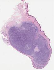 Embryonal rhabdomyosarcoma (Eye (Eyelid)) [1170/5]