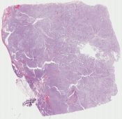 Solid and pseudopapillary tumor (Pancreas) [1170/7]