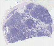 Thymoma (type AB) (Mediastinum (thymus)) [1171/3]