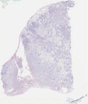 Bronchioloalveolar carcinoma, mucinous (Lung) [1171/5]