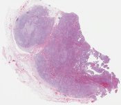 Diffuse tenosynovial giant cell tumor (Soft tissue, thigh) [1172/9]