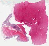 Leiomyosarcoma (Large bowel (colon)) [1173/4]