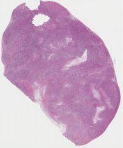 Leiomyosarcoma (Vagina) [1174/5]
