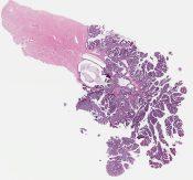 Villoglandular carcinoma (Uterus (cervix)) [1174/6]