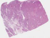 Oncocytoma (Kidney) [1175/2]