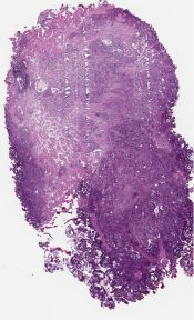Recurrent high grade prostatic adenocarcinoma (Bladder) [1175/7]
