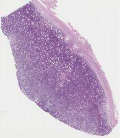 Diffuse large B-cell lymphoma (Testis) [1175/9]