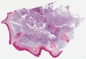 Called acral myxoinflammatory fibroblastic sarcoma I thin it is a myxoid chondrosarcoma (Soft tissue, big toe) [1177/3]