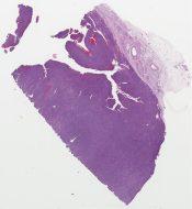 High grade pleomorphic sarcoma (MFH) (Soft tissue, neck) [1177/9]
