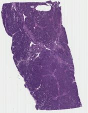 Wilms' tumor, favorable histology (Kidney) [1178/8]