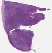 Hodgkin lymphoma, nodular sclerosis, cellular phase (Lymph node, cervical) [1179/1]
