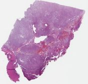 Meningioma (CNS (dura)) [1180/4]