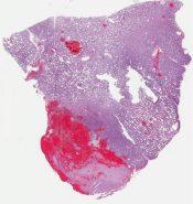 Anaplastic oligodendroglioma (CNS) [1180/7]